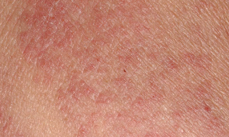 eczema symptoms & signs | neosporin®, Skeleton